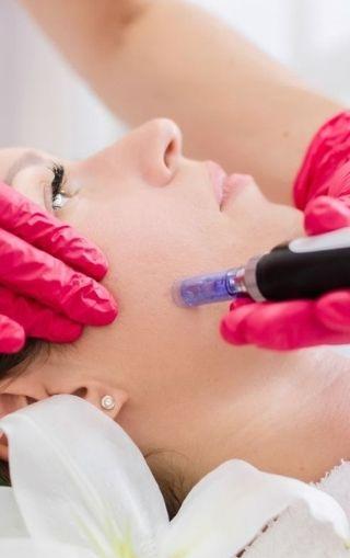 mezoterapia mikroigłowa krem i dotyk